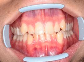 Выравнивание зубов при помощи брекетов. Срок лечения - 1 год 7 месяцев