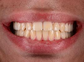 Выравнивание зубов при помощи брекетов. Срок лечения 1 год 7 месяцев
