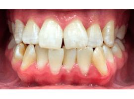 Выравнивание зубов элайнерами. Срок лечения - 1 год и 3 мес.