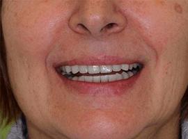 Имплантация зубов. Установка виниров Emax в линию улыбки