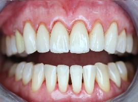 Установка виниров. Реставрация фронтальных зубов. Отбеливание