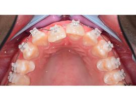 Выравнивание зубов керамическими брекетами.  Срок лечения 11 мес.