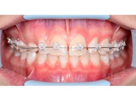 Выравнивание зубов брекетами. Срок лечения 1 год