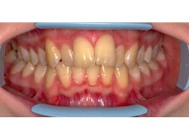 Выравнивание зубов брекетами. Срок лечения 1 год 6 мес.