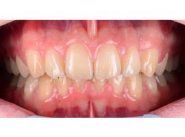 Выравнивание зубов брекетами. Срок лечения 11  мес