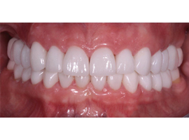 Реставрация зубов. Отбеливание ZOOM 4