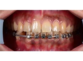 Лечение на брекетах. Подготовка нижней челюсти под имплантат