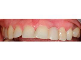 Установка виниров на 6 передних зубов