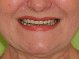 Установка виниров Emax в линию улыбки