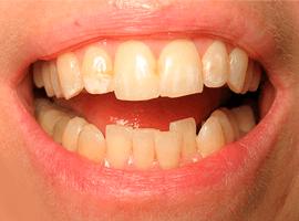 Выравнивание зубов элайнерами. Срок лечения - 1 год