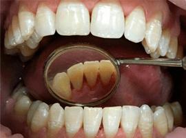 Чистка зубов по швейцарской технологии EMS