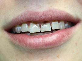 Реставрация зубов на верхней челюсти