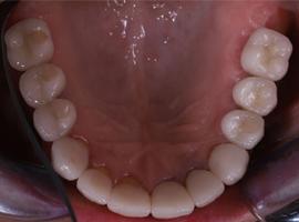 Имлпантация зубов. Установка виниров Emax