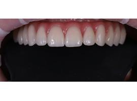 Имплантация зубов. Установка несъемной конструкции на имплантах