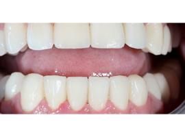 Установка виниров Emax на нижнюю челюсть. Реставрация зубов