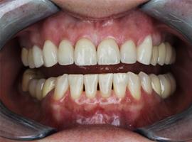 Установка виниров Emax на верхнюю челюсть. Отбеливание ZOOM 4