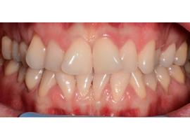 Выравнивание зубов брекетами. Срок лечения 1 год 7 мес