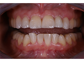 Установка керамических виниров Emax на верхнюю челюсть