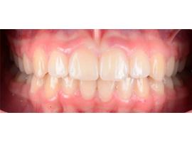 Сужение зубных рядом, исправление скученного положения зубов, срок лечения 1 год 1 мес.