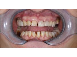 Имплантация зубов, установка циркониевых коронок, керамические виниры