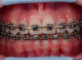 Исправление положения зубов, нормализация окклюзии. Срок лечения — 1 год