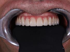 Имплантация зубов all-on-6