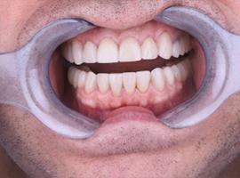 Подготовка пациента к протезированию зубов - изготовление mock up. Примерка будущей улыбки