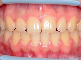Исправление наклонов и положения зубов. Срок лечения 1 г. 6 мес.